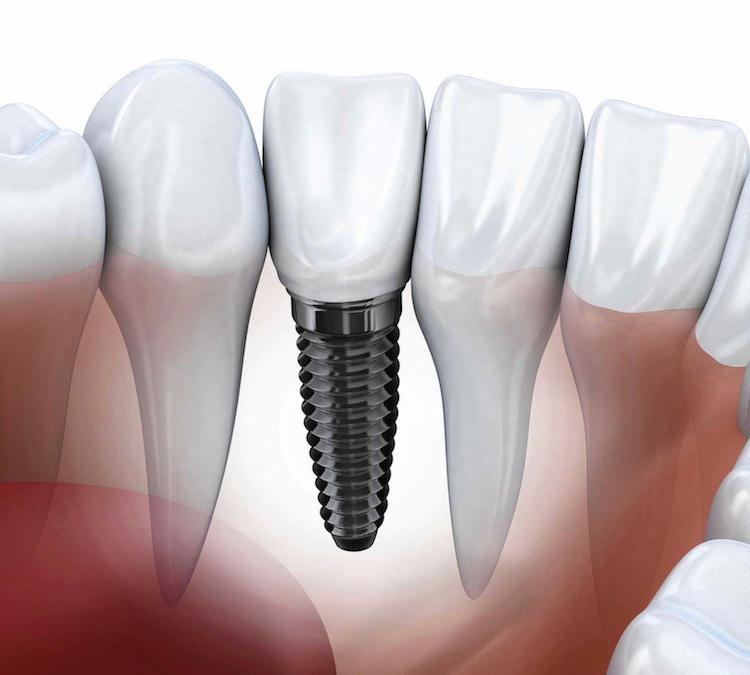 dental implant in Woodbridge